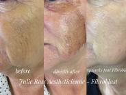 Lower Face Fibroblast to tighten crepey skin