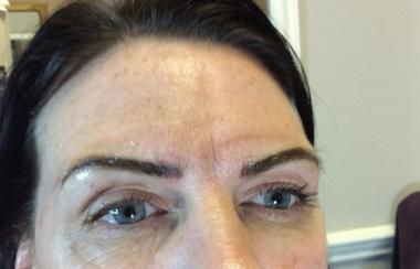 Fibroblast / Permanent Brows