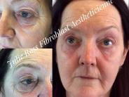 Before and after Fibroblast Eyelid & Under Eye treatment