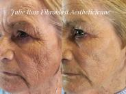 Lower Face Fibroblast to tighten crepey skin