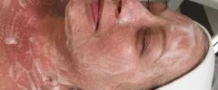 Dermapen Microneedling, Dermalogica Expert status ProSkin 60/30 & Pro Power Peel
