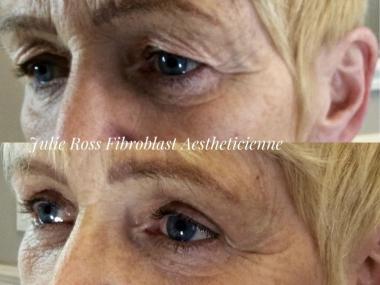 Fibroblast Eyelid Lift