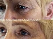 Fibroblast Eyelid 8wks post treatment