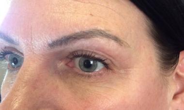 Fibroblast Eyelid healed