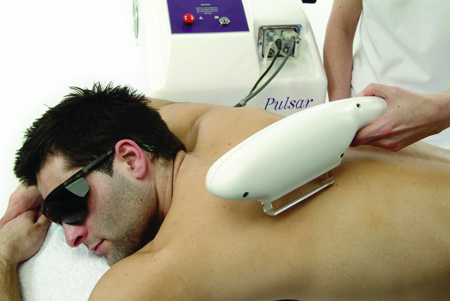 IPL back treatment